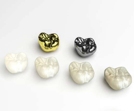 What Is A Dental Crown