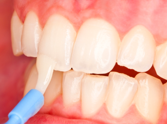Benefits of fluoride varnish application and toothpastes