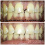 Composite dental veneers by Dr Poonam