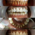 Dental bridge by Dr Poonam at Little Pearls