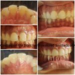 Dental cavities restoration by Dr Poonam at Little Pearls