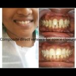 Dental laminates for space closure by Dr Poonam at Little Pearls