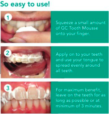 How To Use Tooth Mousse