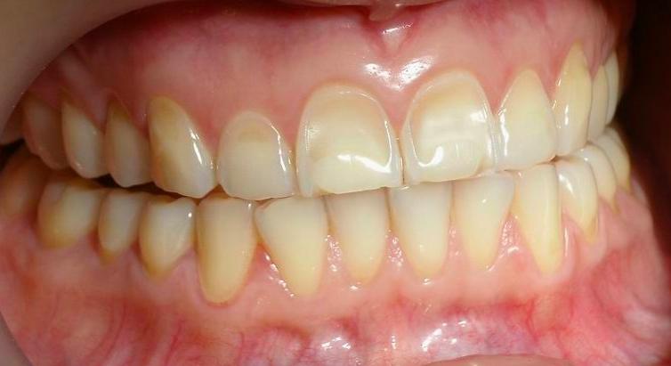 Tooth Mousse Prevents Enamel Erosion