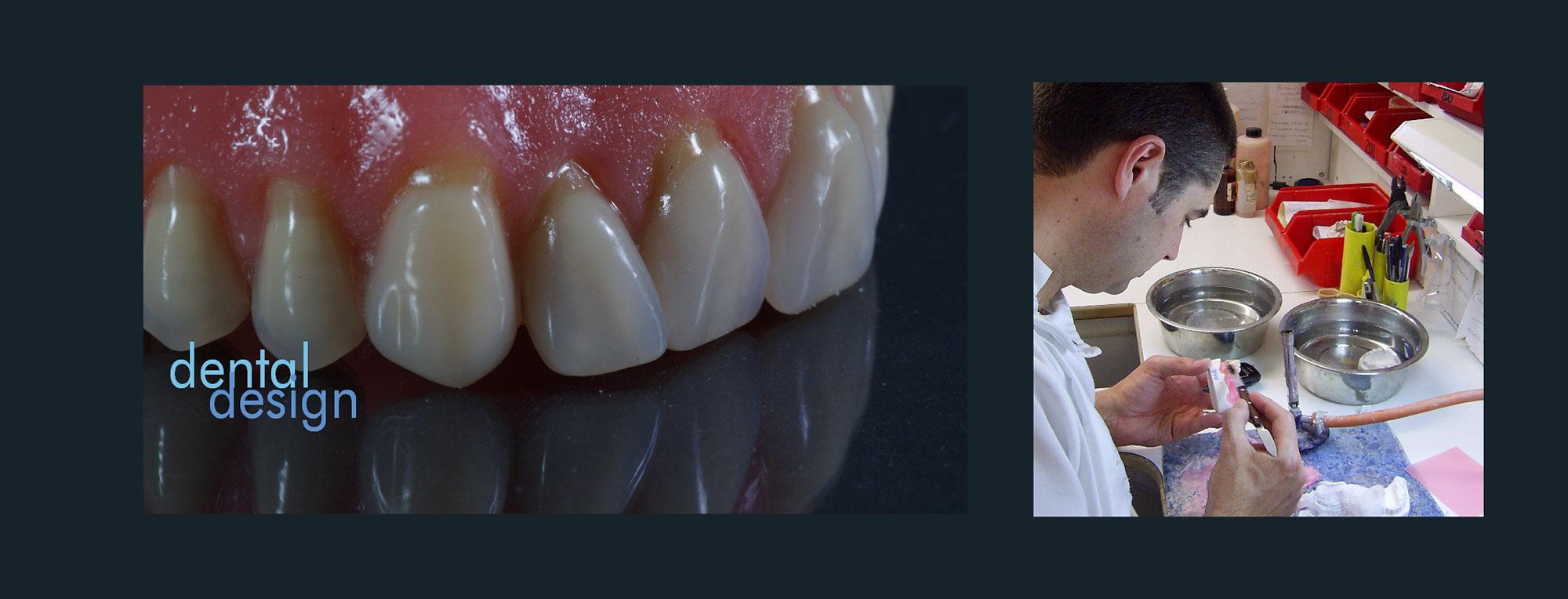 Full Service Dental Laboratory