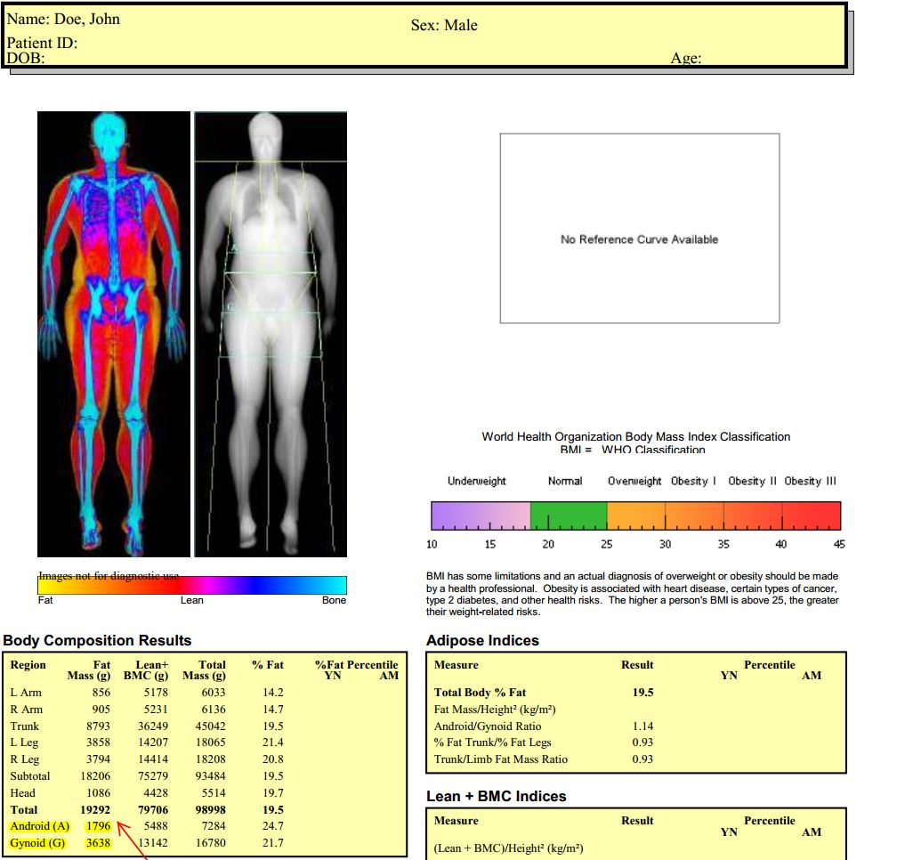 Sample DEXA Scan Report from Measure Up