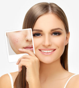 3 Ways to Smooth Over Any Acne in Your Complexion