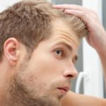 8 Ways to Boost Your Confidence When Suffering From Hair Loss