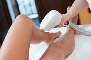 What Every Woman Should Know About Laser Hair Removal