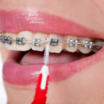 5 Tips for Taking Care of Your Dental Braces While Traveling