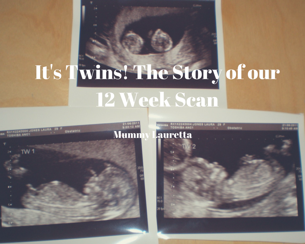 It's Twins blog - the story of our first scan