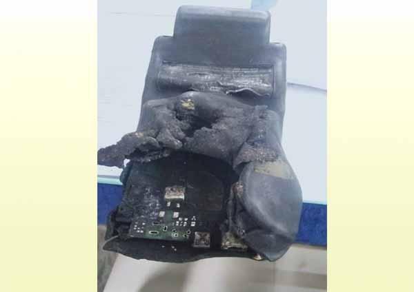 गोंदिया: एसटीच्या तिकीट मशीनमध्ये अचानक स्फोट : महिला वाहक जखमी