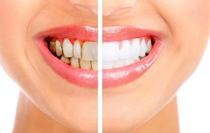 How To Whiten Teeth In Photos in lightroom