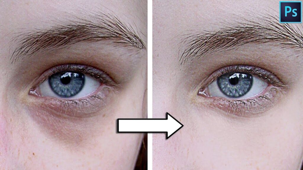 how to get rid of dark circles in photoshop
