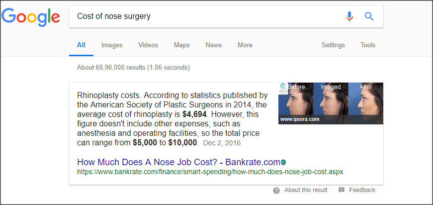 Cost of nose surgery