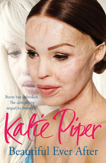 Katie Piper: My Beautiful Face