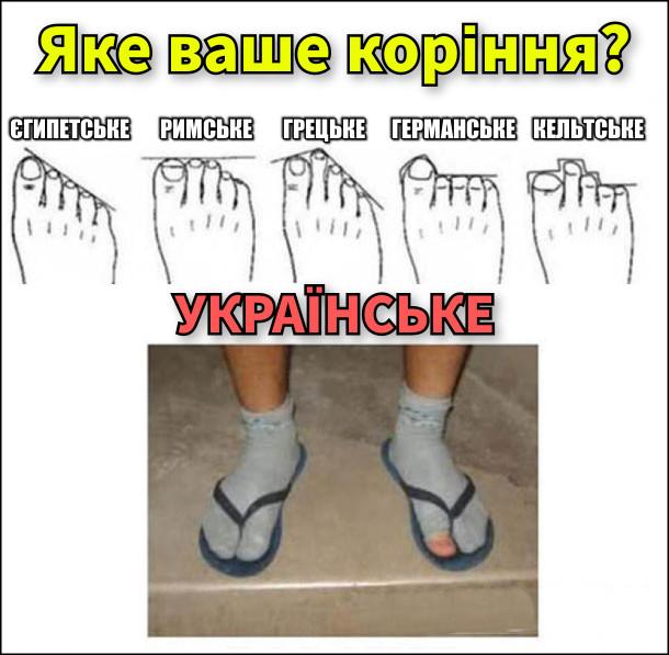 Яке ваше коріння. Тест за пальцями ноги. Є варіанти: єгипетське, римське, грецьке, германське, кельтське і українське (на фото ноги в шкарпетках, наверх в'єтнамки, на одній шкарпетці дірка на великому пальці)