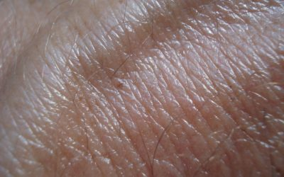 Melanoma blood test: a research from Australia