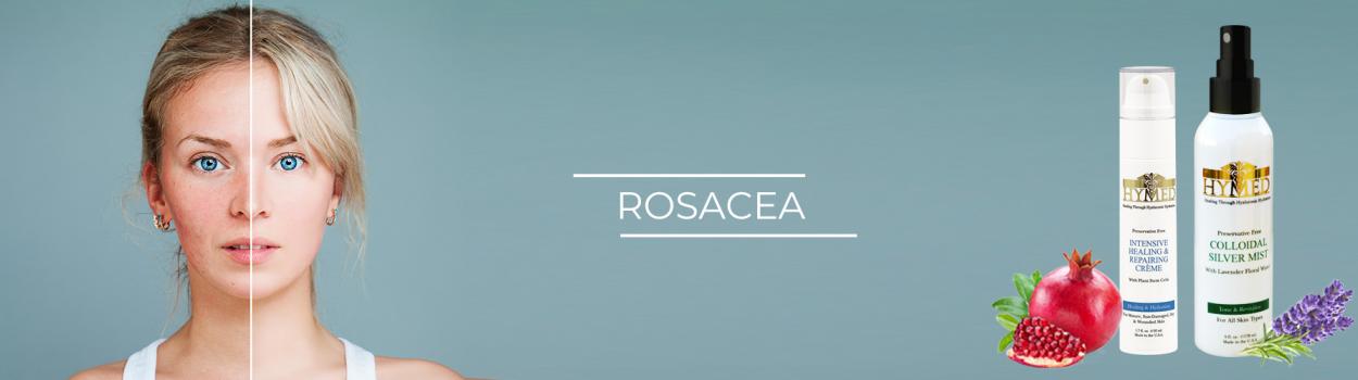rosacea1