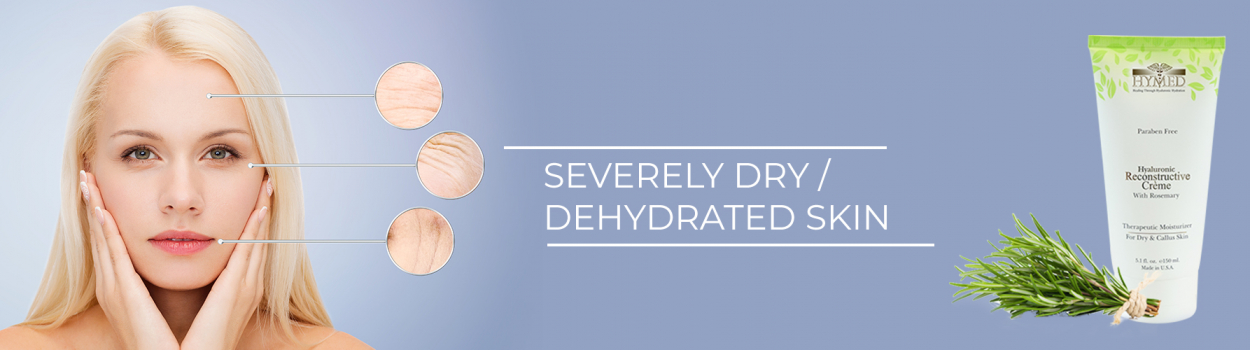 severely-dry-dehydrated-skin