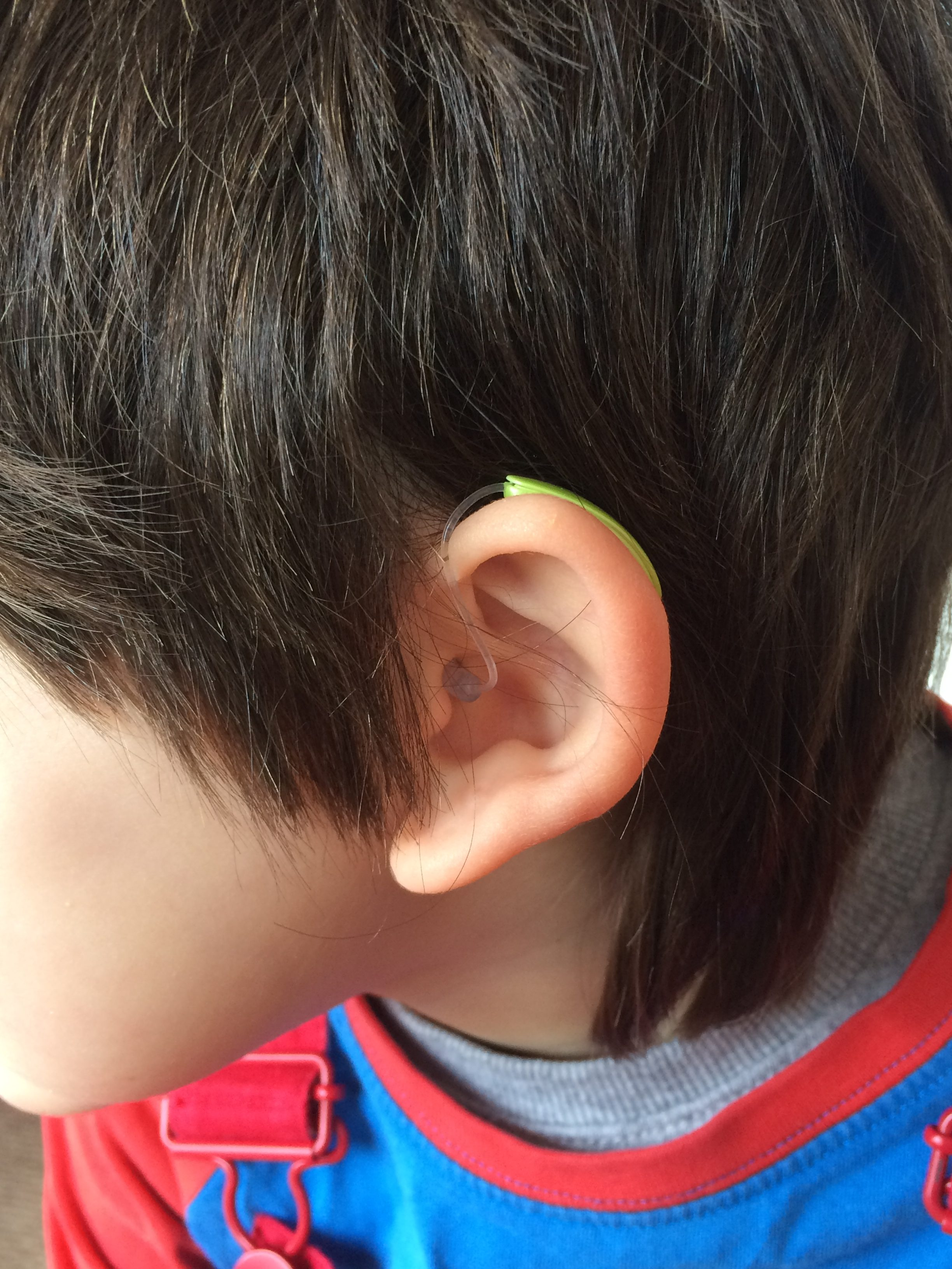 Fitting hearing aids