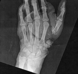 x-ray-pic