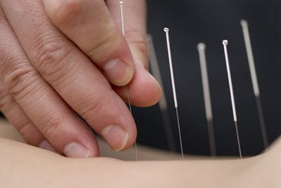 acupuncture service