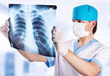Ce trebuie să știm despre tuberculoză?