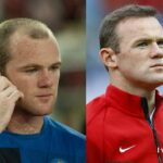 Wayne-Rooney-Before-After-Hair-Transplant