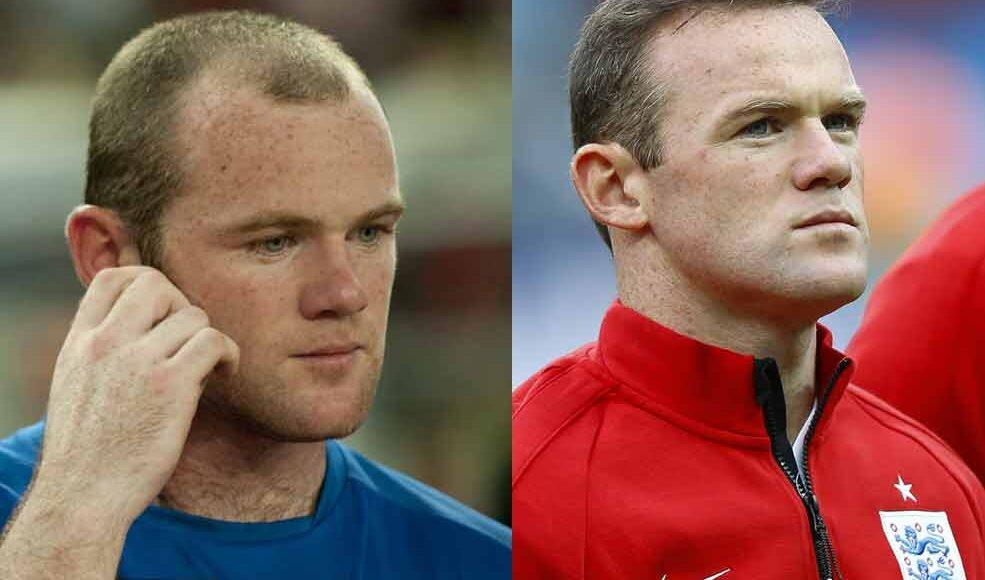 Wayne-Rooney-Before-After-Hair-Transplant