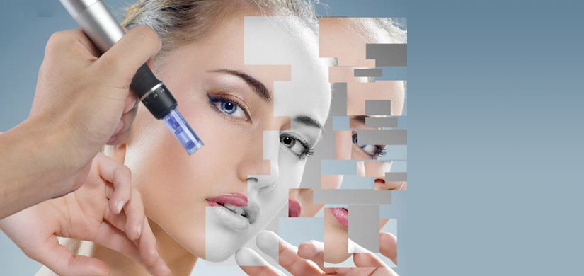 Microneedeling Face rejuvenation treatments Exeter