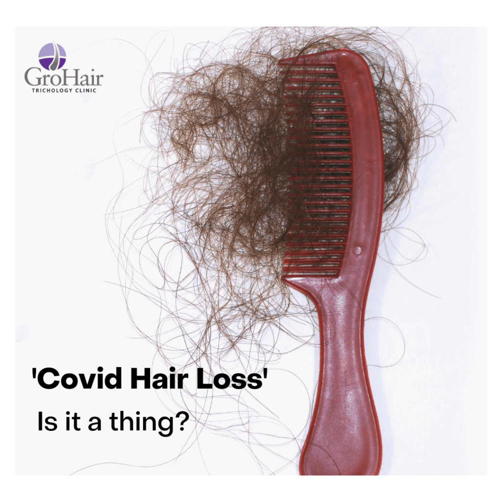 Covid-19 related hair loss