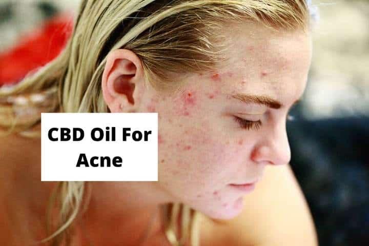 CBD Oil For Acne