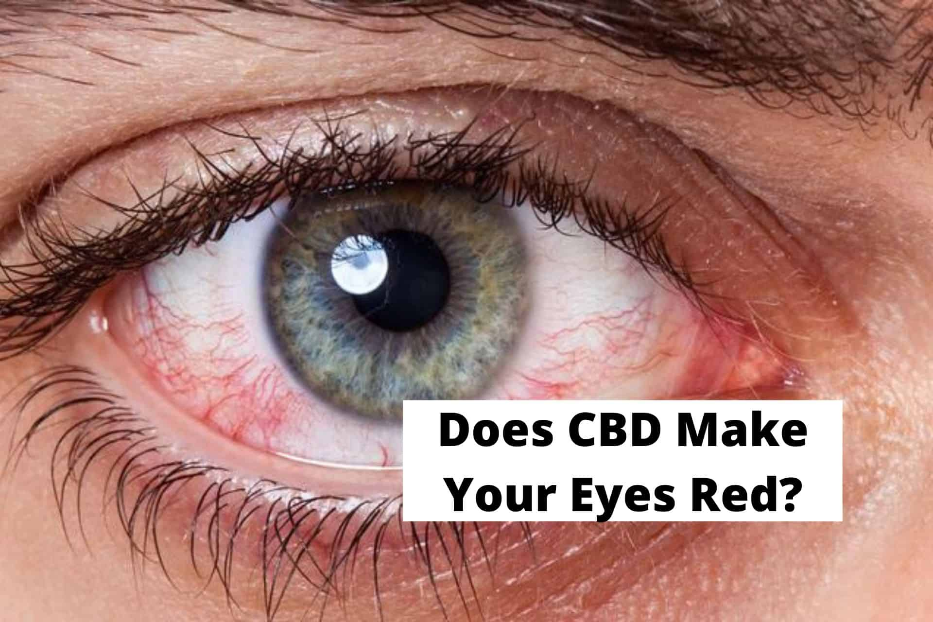Does CBD Make Your Eyes Red?