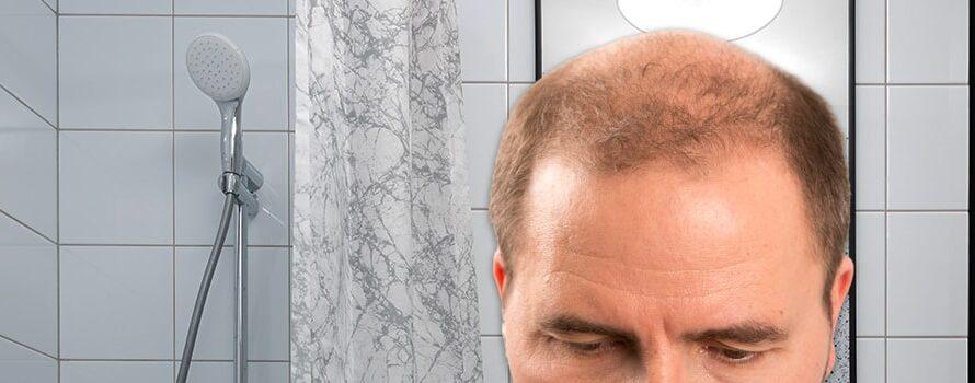 So gewann ich meinen Kampf gegen Haarausfall