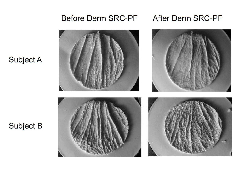 Derm SRC-3