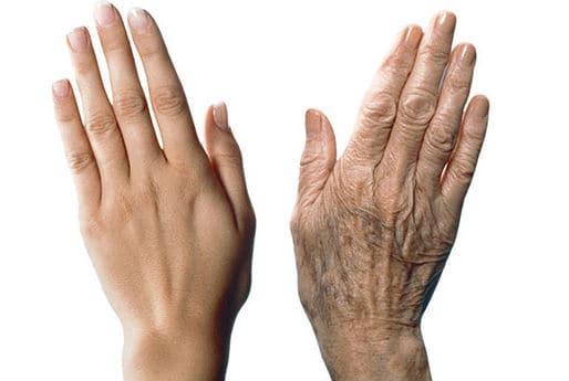 Prevenir las arrugas en las manos