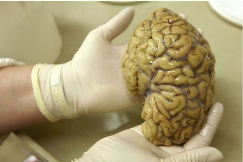 A 2,500 year-old preserved human brain discovered