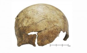 A cranial injury on the frontal bone of a roughly 8-year-old child.