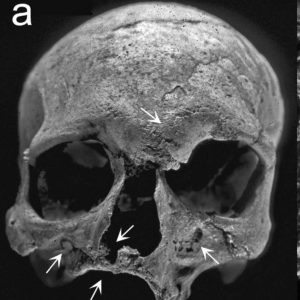 The skull of the 4,000-year-old leper skeleton found buried in Rajasthan, India. The skeleton was interred within a large stone enclosure that had been filled with vitrified ash, considered purifying in Vedic tradition.