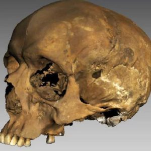 Richard skull uncovered at Thornton Abbey in Lincolnshire died 700 years ago