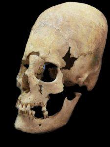 Artificially deformed female skull from Altenerding, an Earyl Medieavel site in Bavaria