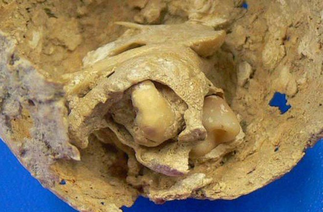 A close-up view of the two teeth still attached to the tumor.