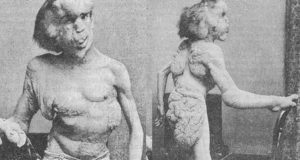 """The public labeled Joseph Merrick as """"The Elephant Man"""" due to his extreme physical deformities."""