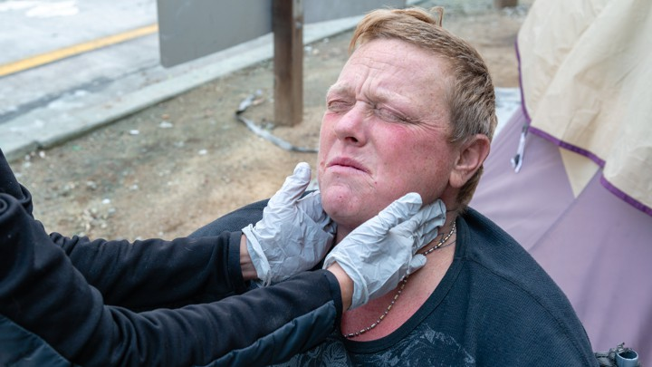 Medieval Diseases Are Infecting California's Homeless