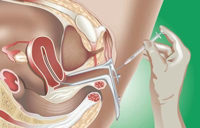 Inseminazione Intrauterina - centro infertilità puglia