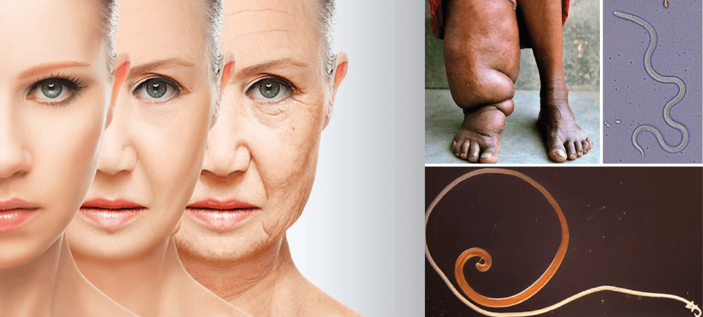 woman ageing and a parasitic worm
