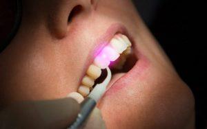 Laser Dentist in Reston VA