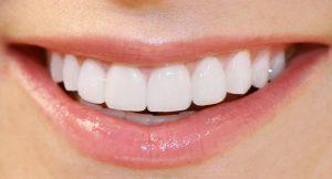Cosmetic Dentistry in Reston VA