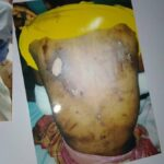 Ikechukwu Amadi. Murdered by sars after being tortured, fed and bathed acid August 2020
